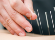 placing acupuncture needles on body