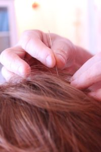 Acupuncture on scalp