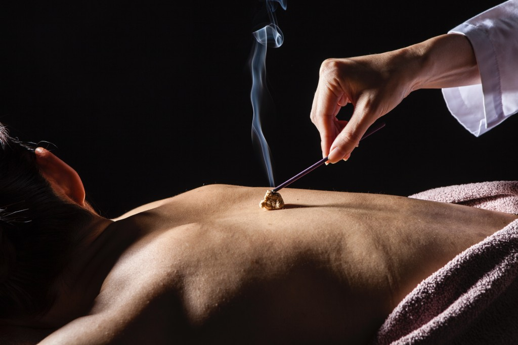 AcupunctureMoxibustion2